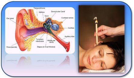 3 Ways Ear Candling Can Benefit You